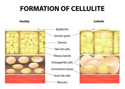 Inexpensive Cellulite Home Remedies