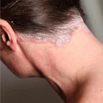 Natural Remedies for Psoriasis of the scalp.