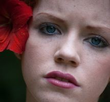 6 Natural Ways to Treat Rosacea and Redness-